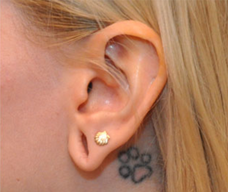gauged earlobe